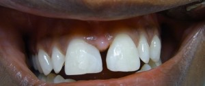 Bild zweier Schneidezähne mit geschlossener Zahnlücke