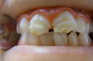 genetische Fehlbildung der Zähne