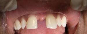 Bild einer Zahnlücke - Diasthema
