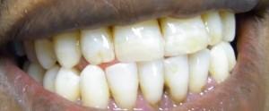 Die Frakturen der Zähne wurden mit Füllstoff aufgefüllt