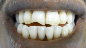 Frakturierte Zähne vor der Behandlung